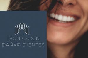 Estética dental | carillas | Dentista de confianza en San Sebastián de los Reyes Durident Madrid