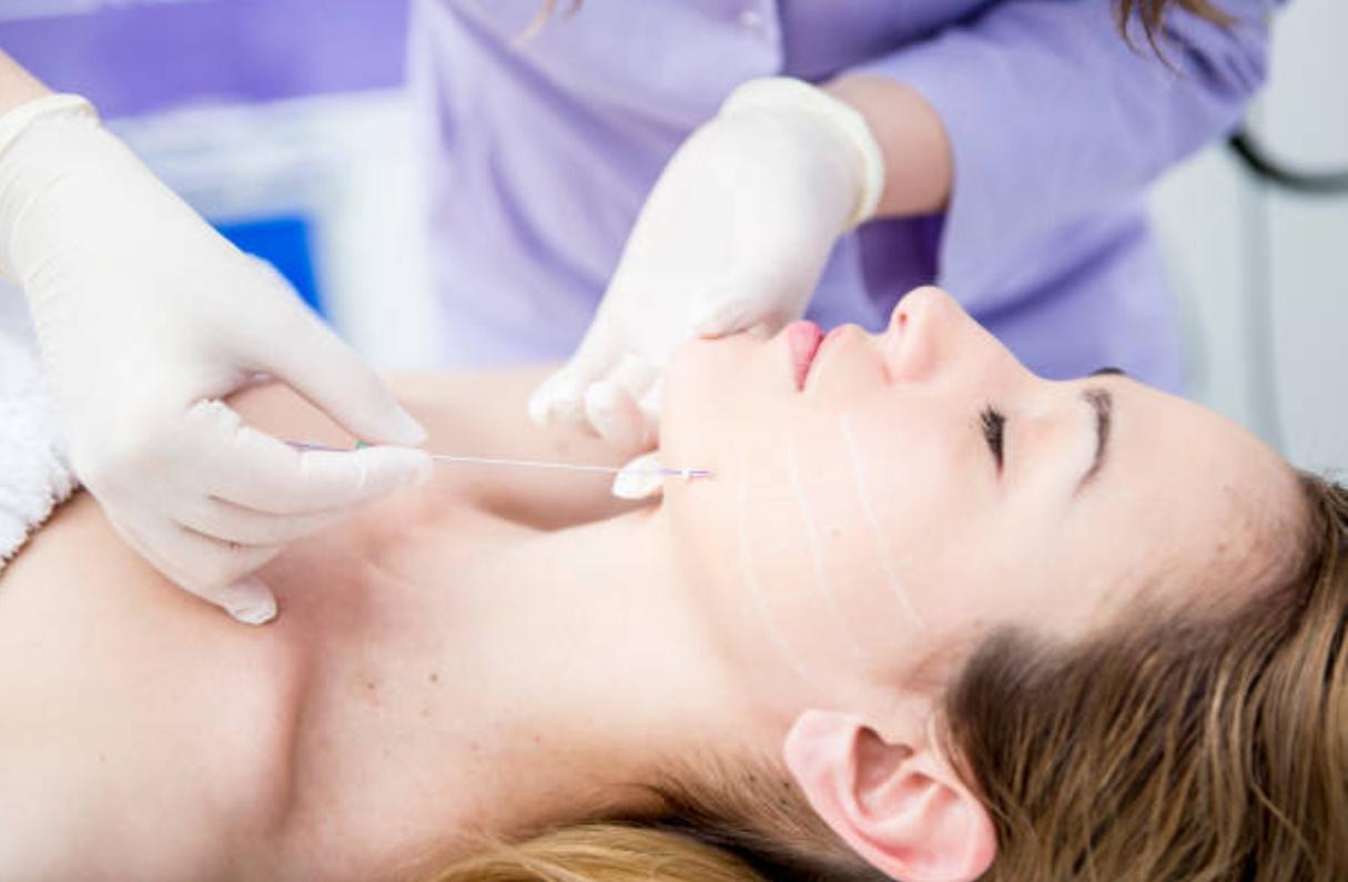 Medicina estética | Hilos tensores | Dentista de confianza en San Sebastián de los Reyes Durident Madrid